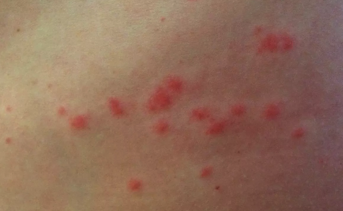 sea lice rash